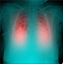 COVID-19, coronavirus, radiografías, RX, neumonía, SARS-CoV-2, IFIC, Inteligencia Artificial, Carlos III, FISABIO, UPV,